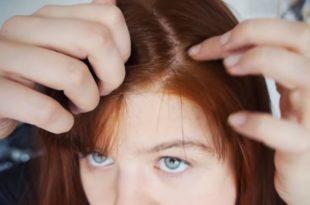 Głożyna na włosy