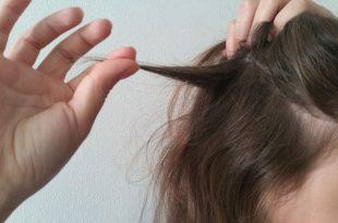 łysienie plackowate czy włosy odrastają
