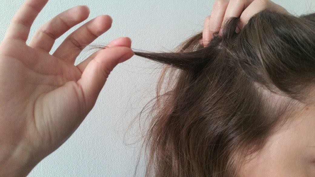 co stosować na wypadanie włosów po ciąży