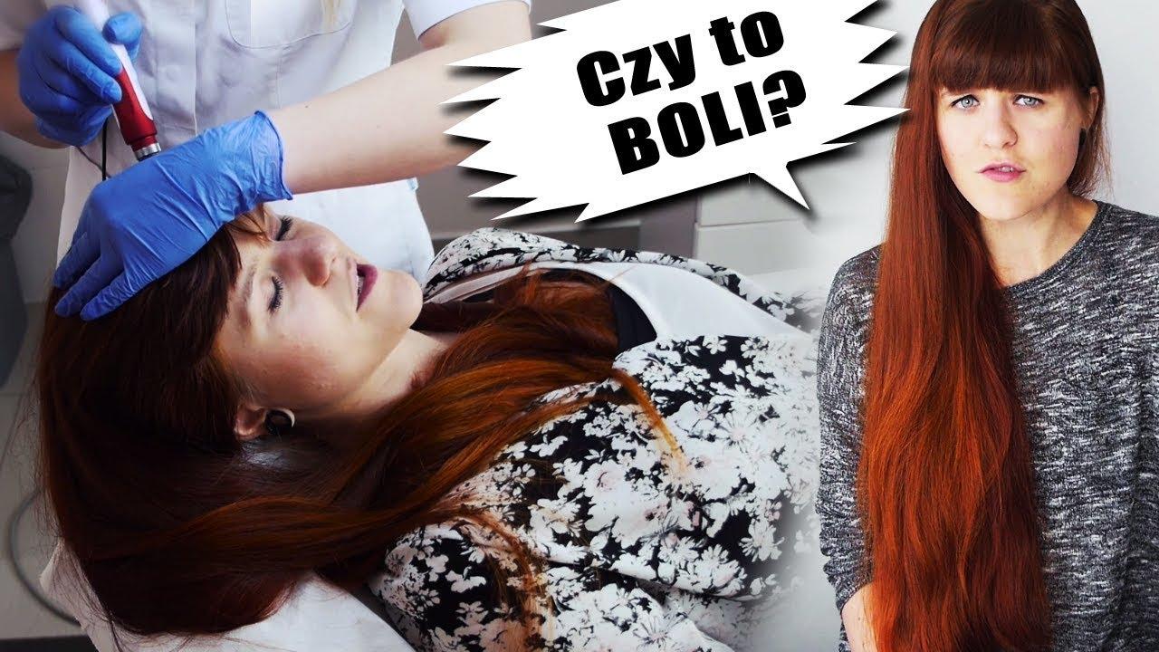 Szybszy porost włosów? Mezoterapia i wcierki!