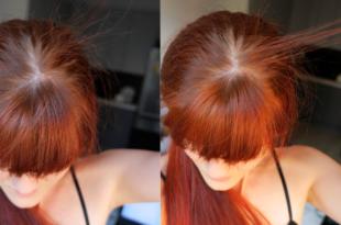 baby hairy Preparaty na porost włosów: co działa?